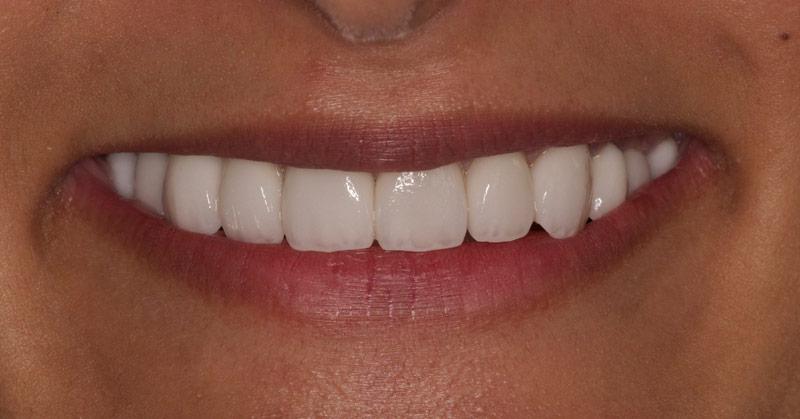 Dental Veneers After