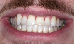 Six Month Smiles - After